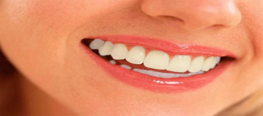 De ce isi schimba dintii culoarea?