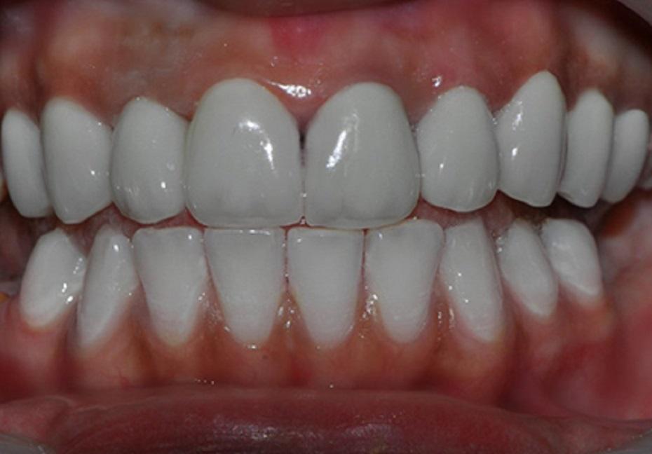 Argumente pro coroane dentare realizate integral din ceramica